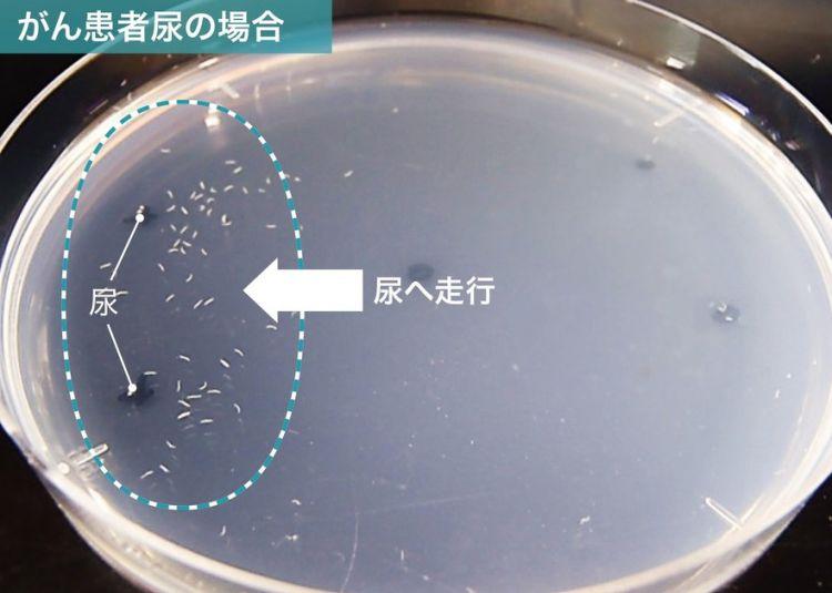 日本研发出癌症检测新技术,一滴尿液测癌症,低价且高效